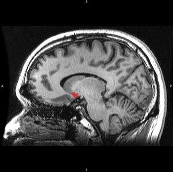 How sugar hijacks the brain: 4 signs of addiction