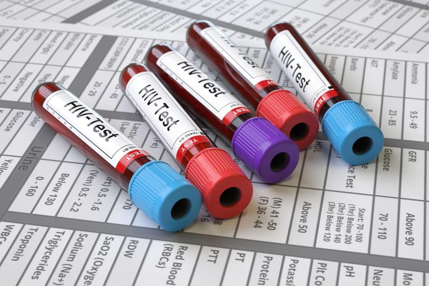 HIV Diagnosis: Testing and Getting Results